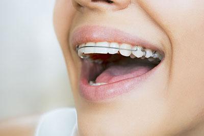LA Dental Arts-Bershadsky DDS-Los Angeles Dentist-dental-orthodontics20177