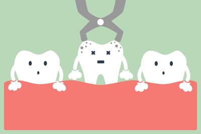 LA Dental Arts-Bershadsky DDS-Los Angeles Dentist-wisdom teeth