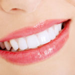 LA Dental Arts-Bershadsky DDS-Los Angeles Dentist-teeth whitening smile