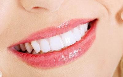 LA Dental Arts-Bershadsky DDS-Los Angeles Dentist-teeth whitening smile