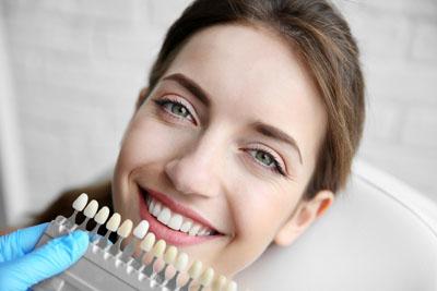 LA Dental Arts-Bershadsky DDS-Los Angeles Dentist-teeth-whitening201711