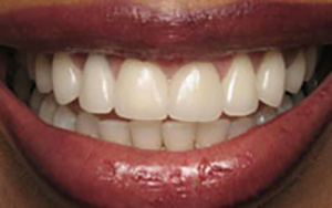 LA Dental Arts-Bershadsky DDS-Los Angeles Dentist-1a