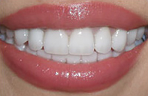 LA Dental Arts-Bershadsky DDS-Los Angeles Dentist-5a
