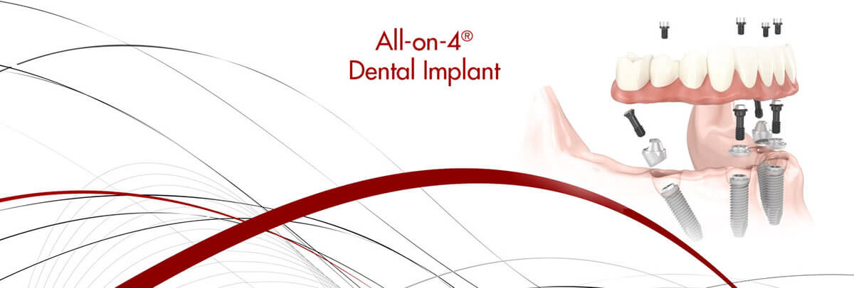 all-on-4-dental-implants-header