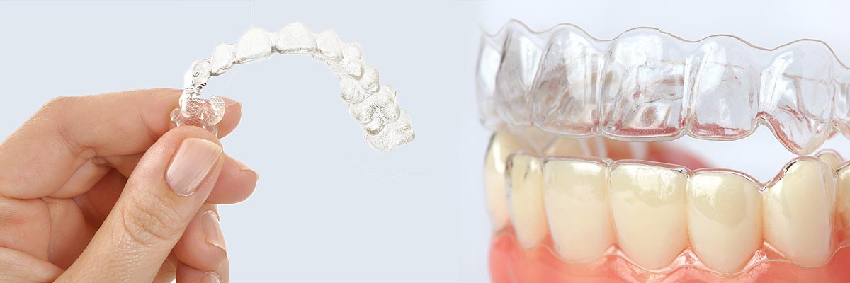 LA Dental Arts-Bershadsky DDS-Los Angeles Dentist-alternative to braces for teens header