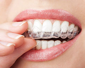 LA Dental Arts-Bershadsky DDS-Los Angeles Dentist-alternative to braces for teens