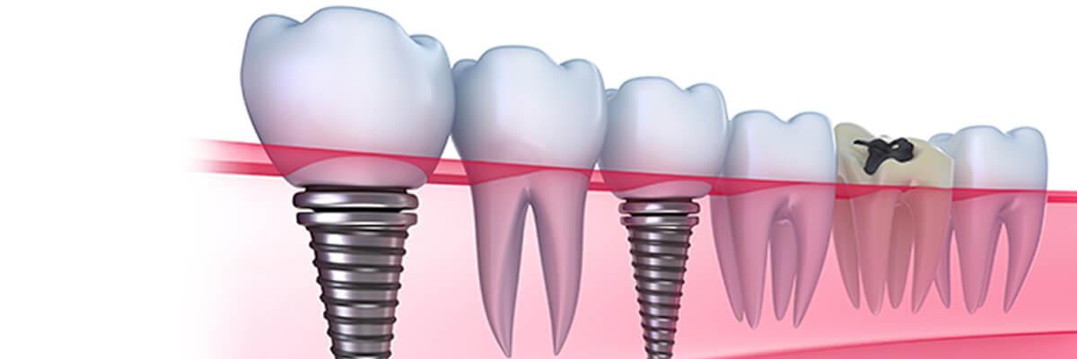 LA Dental Arts - Bershadsky DDS - Los Angeles Dentist - Branded Dental Products Header