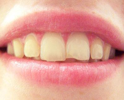 LA Dental Arts-Bershadsky DDS-Los Angeles Dentist-chip my tooth