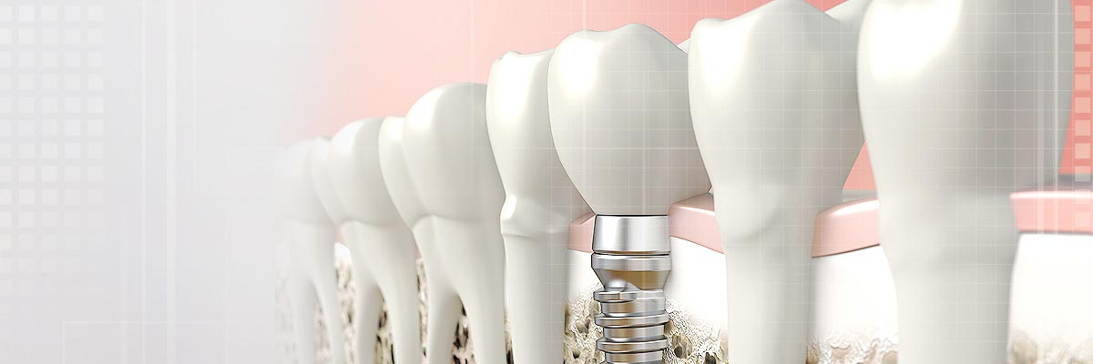 LA Dental Arts - Bershadsky DDS - Los Angeles Dentist - Composite Fillings Header