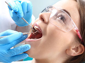 LA Dental Arts - Bershadsky DDS - Los Angeles Dentist - Composite Fillings