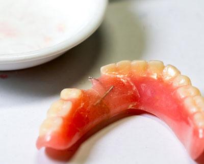 LA Dental Arts-Bershadsky DDS-Los Angeles Dentist-damage my dentures