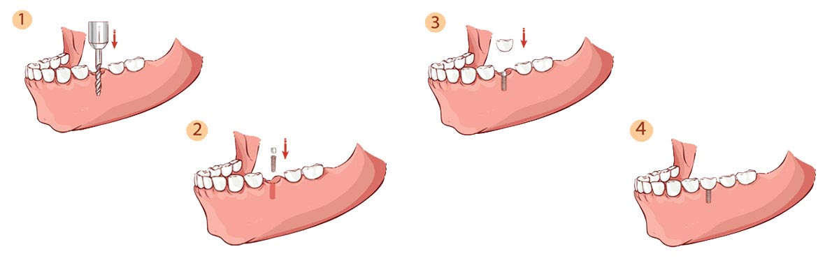 LA Dental Arts-Bershadsky DDS-Los Angeles Dentist-dental implants procedure header