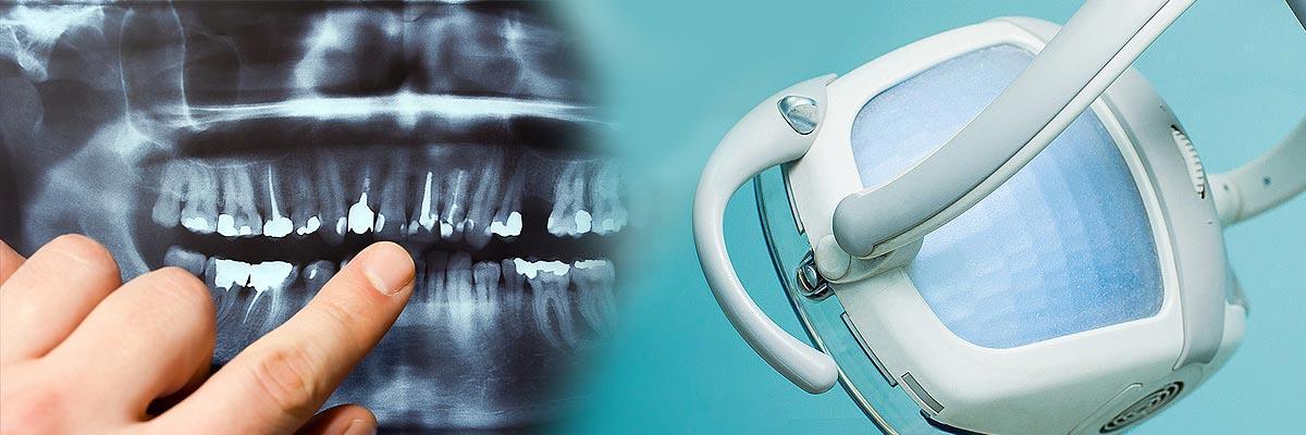 LA Dental Arts-Bershadsky DDS-Los Angeles Dentist-dental implant consultation header