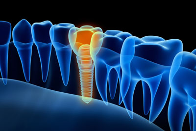 LA Dental Arts-Bershadsky DDS-Los Angeles Dentist-dental-implants20176