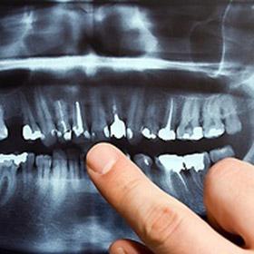 LA Dental Arts - Bershadsky DDS - Los Angeles Dentist - Dental Services Photo2