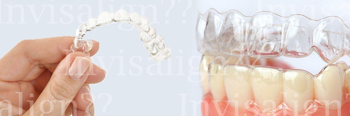 LA Dental Arts-Bershadsky DDS-Los Angeles Dentist-does invisalign work