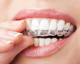 LA Dental Arts-Bershadsky DDS-Los Angeles Dentist-does invisalign really work