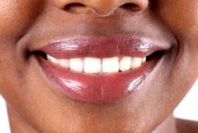 LA Dental Arts - Bershadsky DDS - Los Angeles Dentist - Snap on Smile