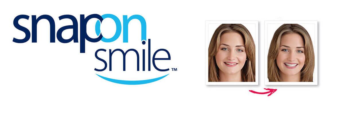 snap-on-smile-header