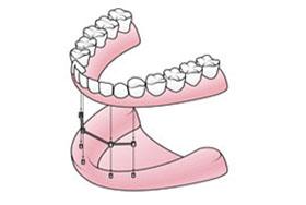 teethxpress