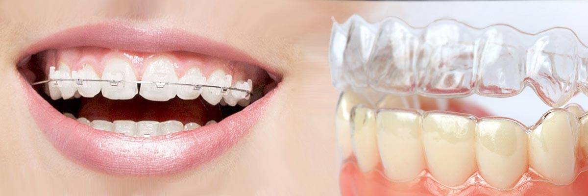 LA Dental Arts-Bershadsky DDS-Los Angeles Dentist-which is better invisalign or braces